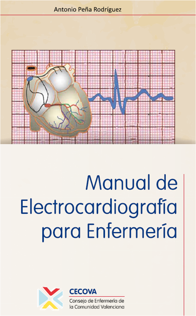 Manual de electrocardiograf a para enfermer a gratuito for Manual de restaurante pdf